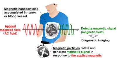 Magnetic sensor is basis for image diagnosis technology